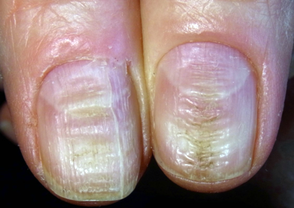 3 REASONS YOU SHOULD STOP BITING YOUR NAIL RIGHT NOW! | Herbz & Healz