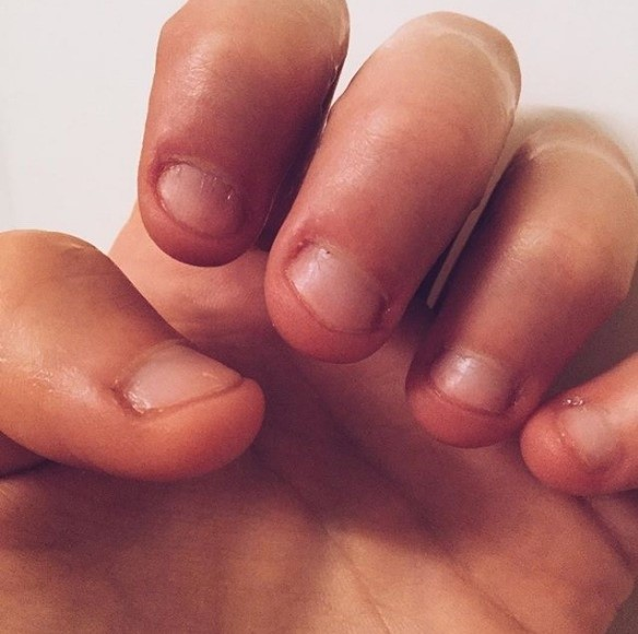 3 REASONS YOU SHOULD STOP BITING YOUR NAIL RIGHT NOW ...